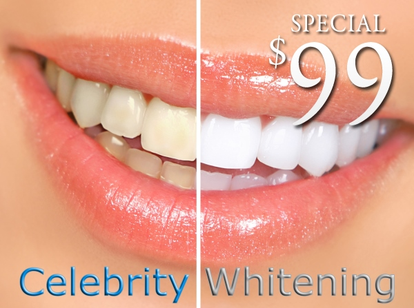 Teeth Whitening only $99