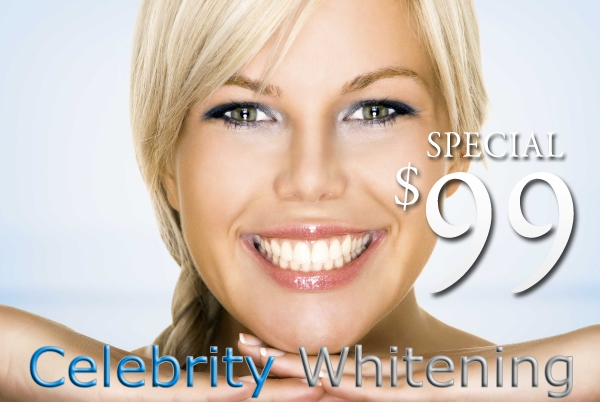 Teeth Whitening Supplies