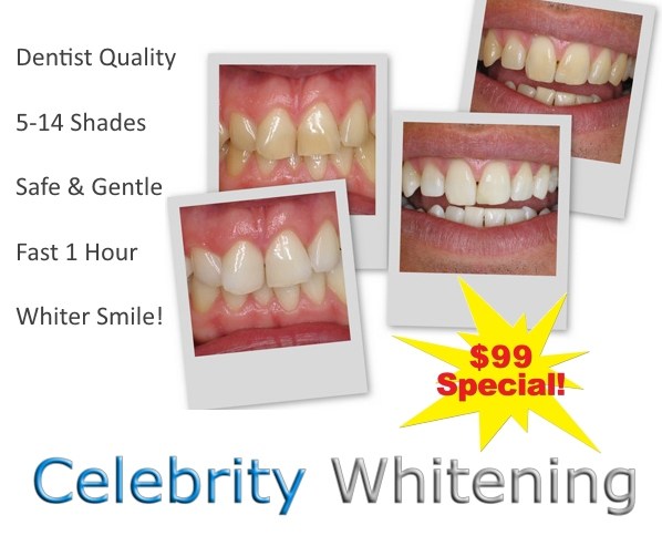 Teeth Whitening for Professionals