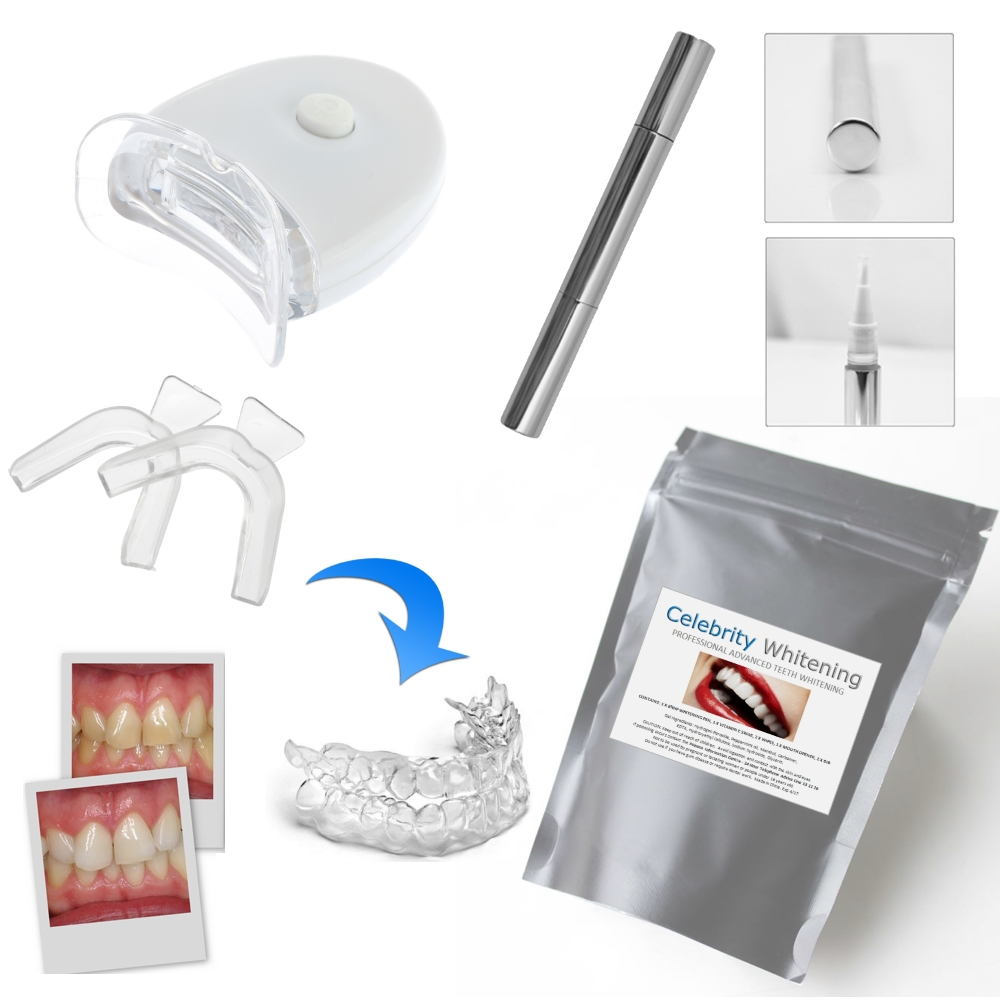 Take Home DIY Teeth Whitening Kit LED - RRP $35.95-$49.95