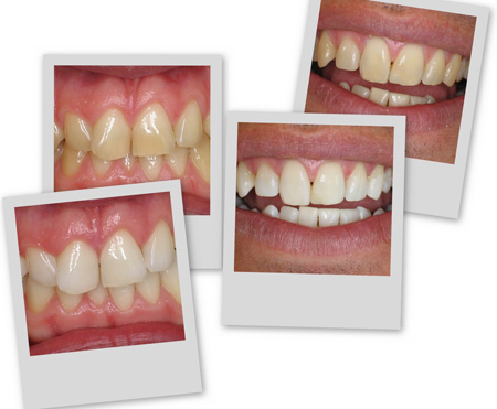 Best Teeth Whitening Results