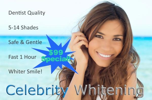 Teeth Whitening Business