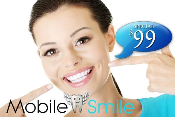 Mobile Teeth Whitening $99