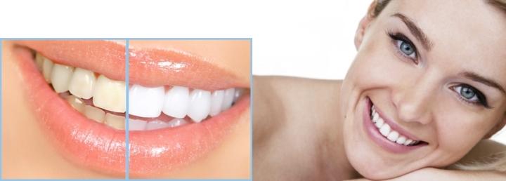 Teeth Whitening Take Home Kits